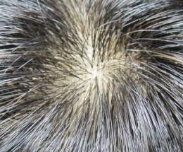 カツラの分け目やつむじは人工皮膚で自然