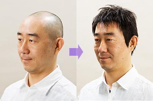 男性用セミオーダーかつらモデル