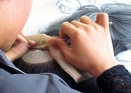 高度の技術を要する植毛作業