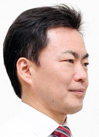 M型脱毛(額が後退した薄毛)モデル3