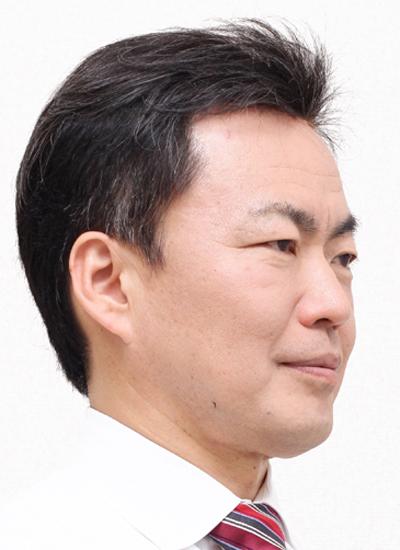 M型脱毛(額が後退した薄毛)モデル2拡大