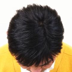 男性かつら髪型12上から画像