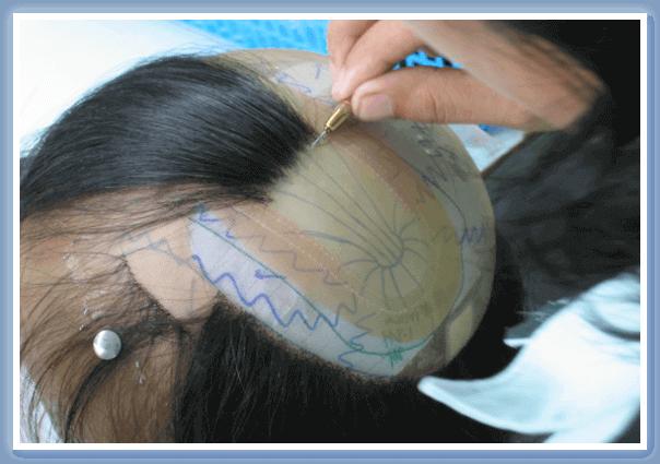 髪の毛を一本一本、手植えで作成