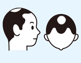 頭頂部の薄毛(O型脱毛)