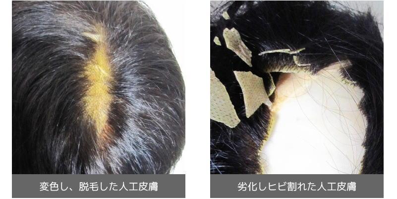 変色・脱毛・劣化した人工皮膚画像