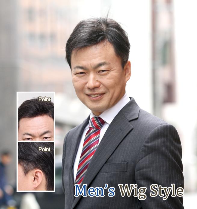 部分カツラ装着 40代男性 M型O型壮年性脱毛