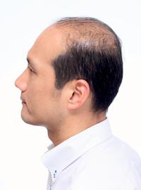 男性かつら髪型006装着前側面画像