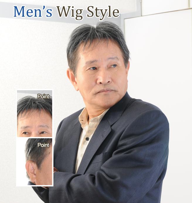 部分カツラ装着 60代男性 M型U型壮年性脱毛