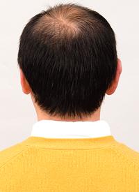 男性かつら髪型013着用前後ろ画像