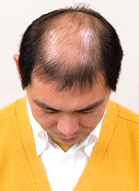 男性かつら髪型013装着前側面画像