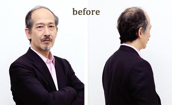 かつら装着前model028画像