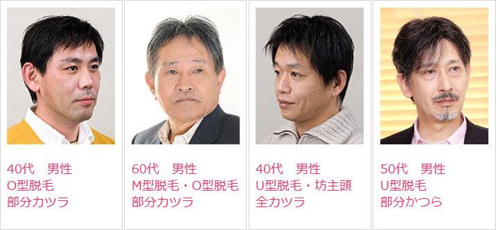 男性かつら髪型例・ウィッグスタイル集2