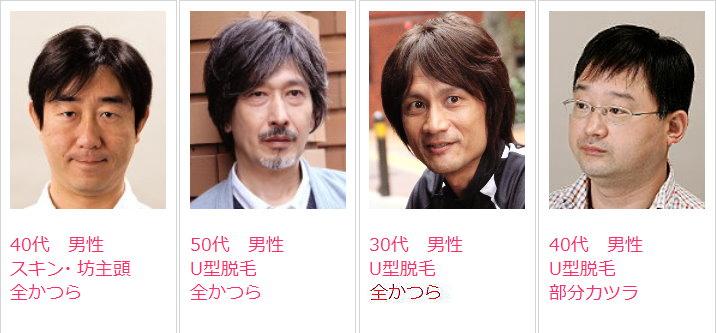 男性かつら髪型例・ウィッグスタイル集4