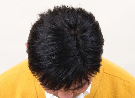男性かつら髪型12 上から