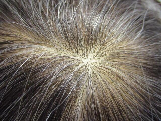 毛量が少なめの人工皮膚のツムジ