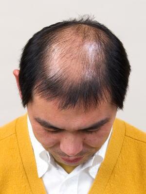 O型脱毛(頭頂部の薄毛)モデル上