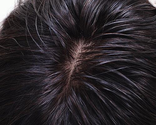 通気性のある自然な頭皮 かつらイメージ写真